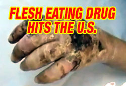Krokodil Flesh Eating Drug